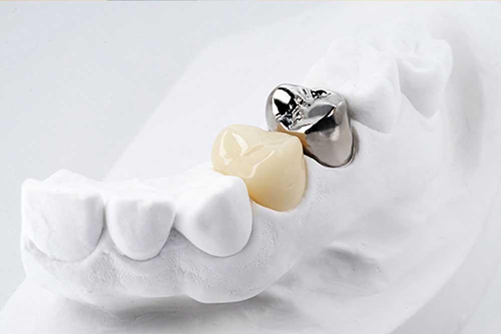 小臼歯CAD/CAM冠