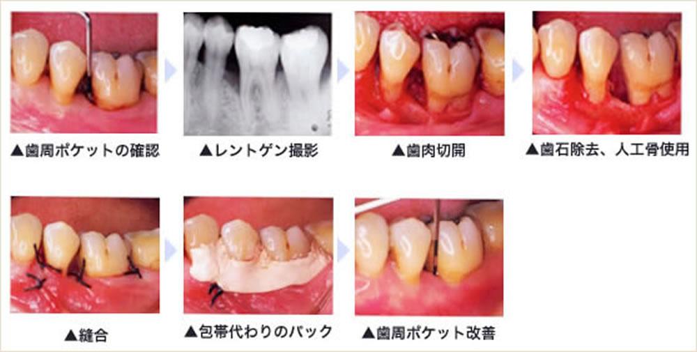歯周病症状が重度の場合