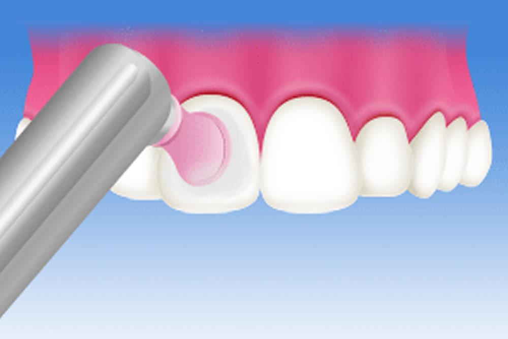 歯を美しく保つ